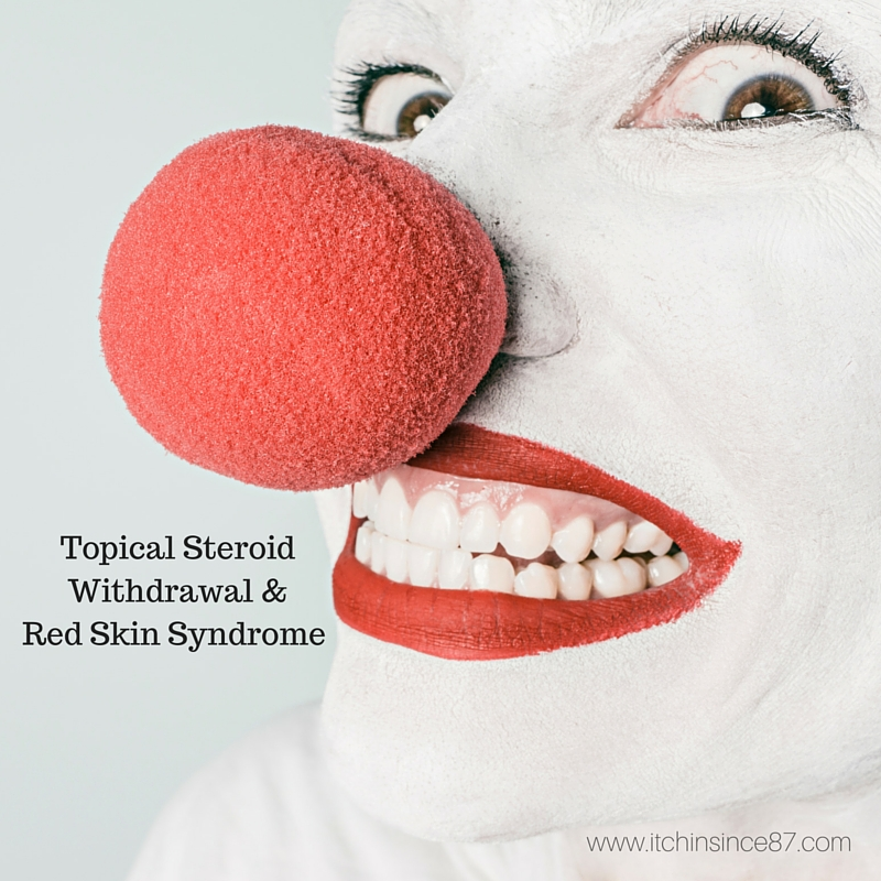 Topical Steroid Withdrawal & Red Skin Syndrome