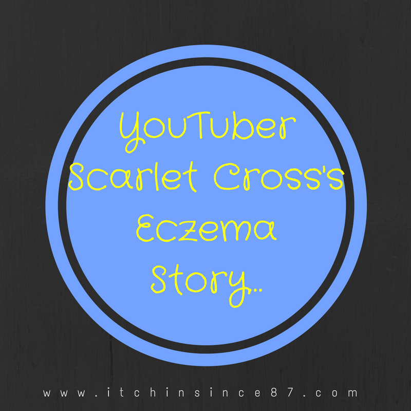 YouTuber Scarlet Cross Eczema Story…