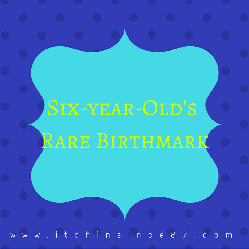 six-year-olds-rare-birthmark