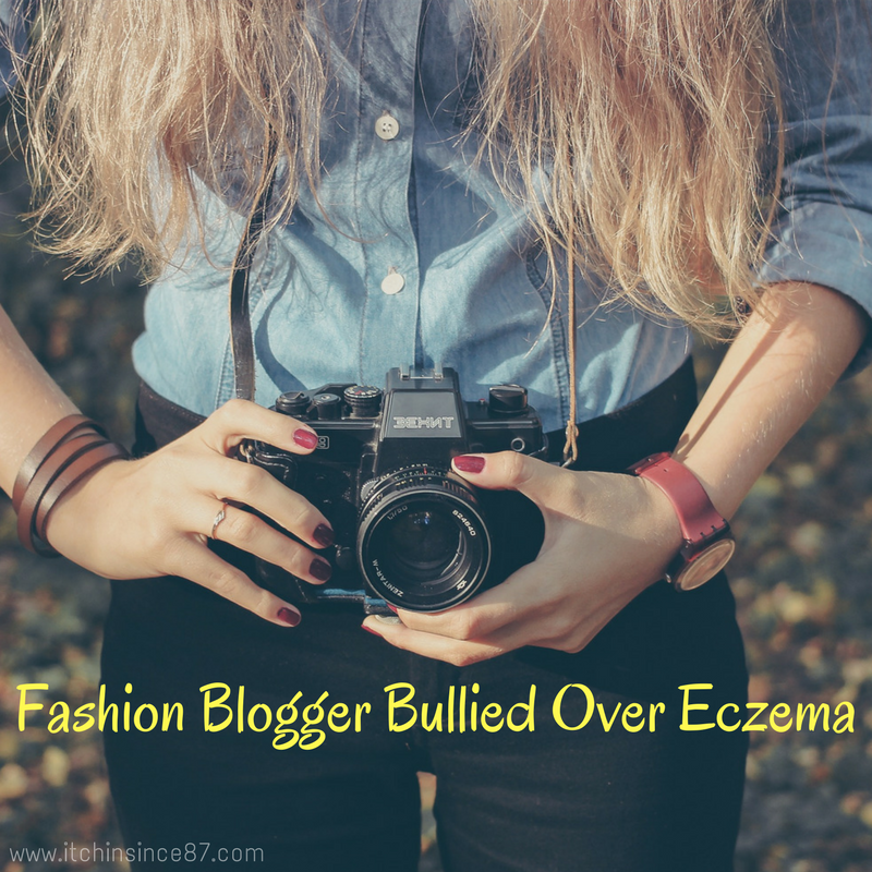fashion blogger bullied over eczema